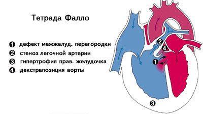 Тетрада Фалло у новорожденных – коррекция и лечение в Москве